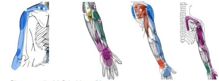 Trigger Point Chart of arm Pain